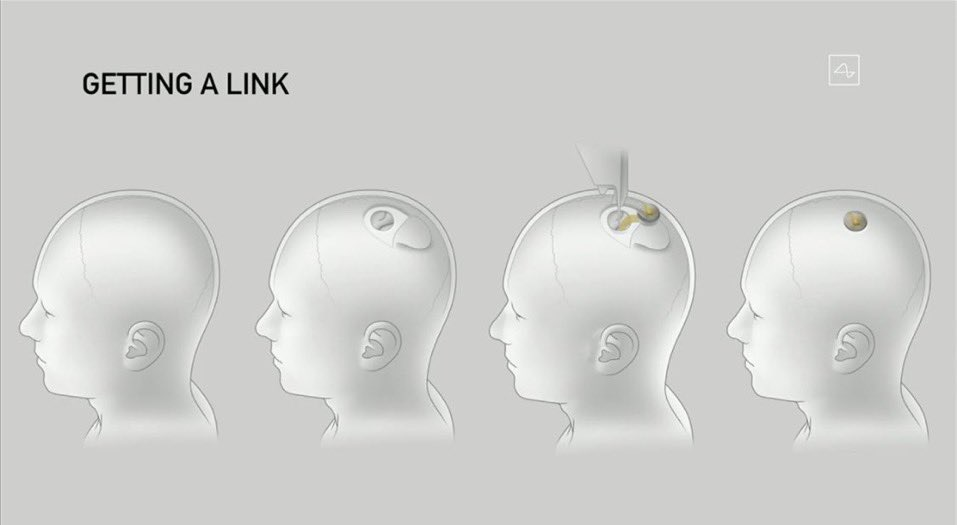 Elon Musk zaprezentował Neuralink